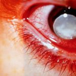 What is Glaucoma Disease?