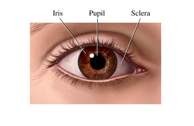 Glaucoma Symptoms